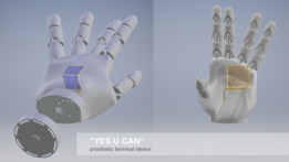 yes you CAN - prosthetic terminal device