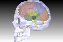 Cavernous Haemangioma-With Brain & Skull in Autocad 3D