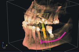 Bicon dental implant CAD