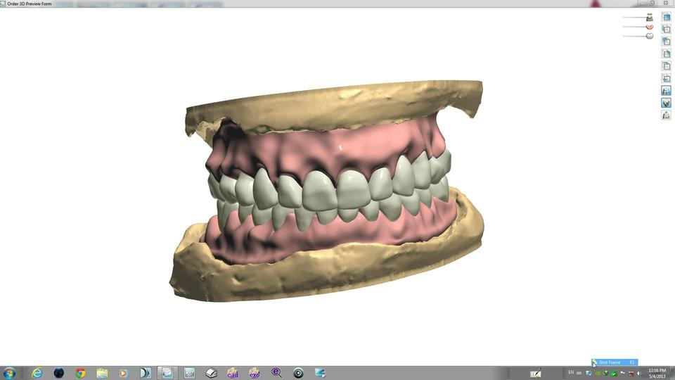 Digital Full Dentures | 3D CAD Model Library | GrabCAD