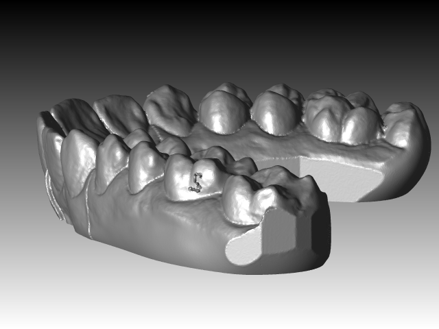 dental impression | 3D CAD Model Library | GrabCAD