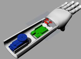Diseño Antebrazo 4