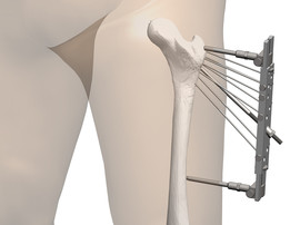 treatment of hip fractures. means for introducing needles.