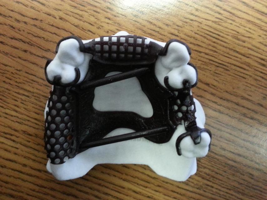 Digital Dental RPD Design | 3D CAD Model Library | GrabCAD