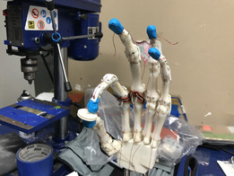 Biomimetic Robotic Prosthetic Hand